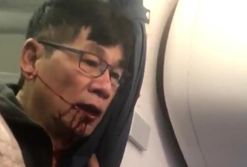 United Airlines catastrophe demonstrates the human and fiscal costs of both the airline industry and regulatory agencies' failure to embrace marketforces